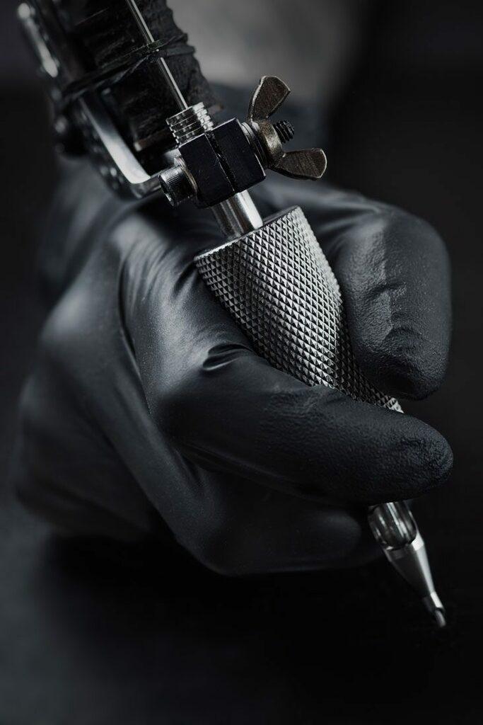 detatouage-laser