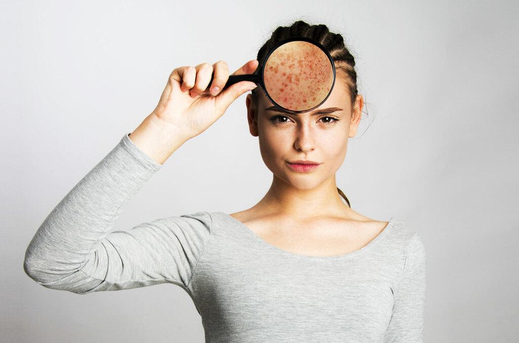 erythrose-faciale-visage-traitement