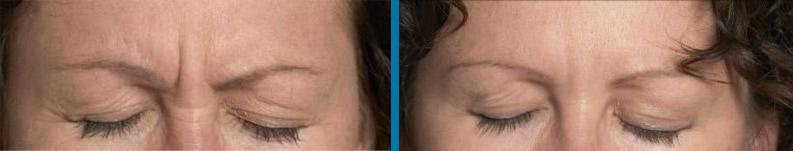 injection-botox-avant-après